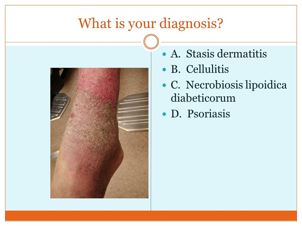 What is your diagnosis? A. Stasis dermatitis B. Cellulitis C. Necrobiosis lipoidica diabeticorum D. Psoriasis