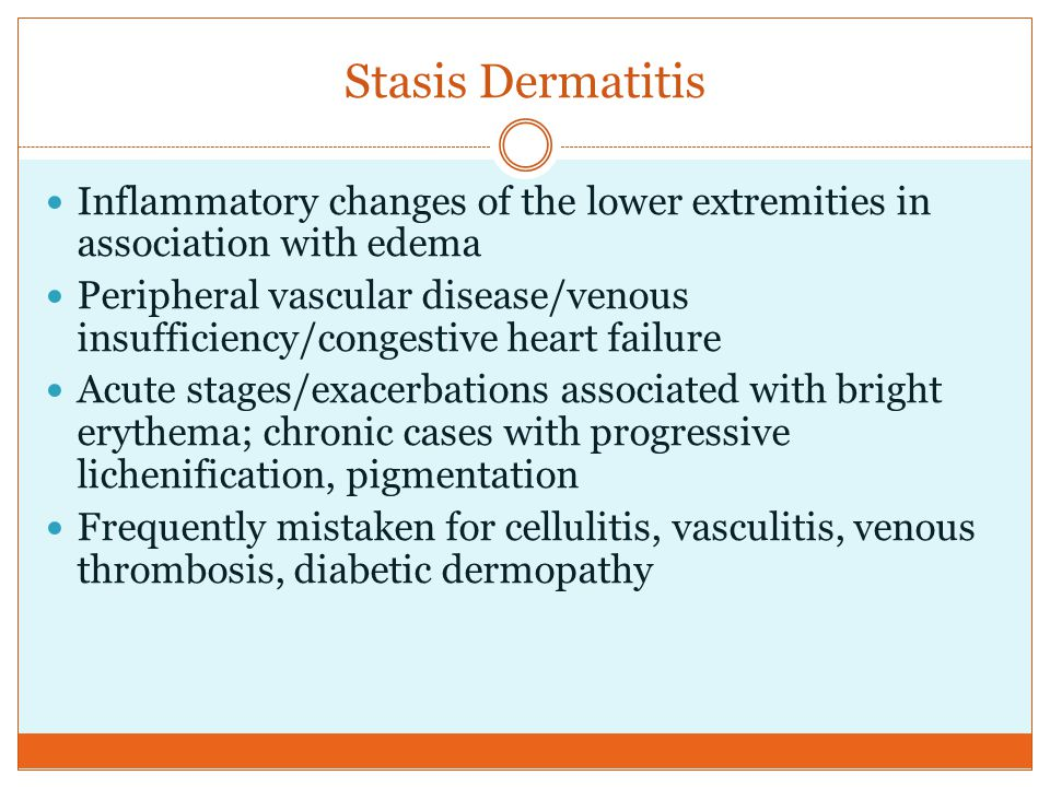 Stasis Dermatitis Inflammatory changes of the lower extremities in association with edema Peripheral vascular disease/venous insufficiency/congestive