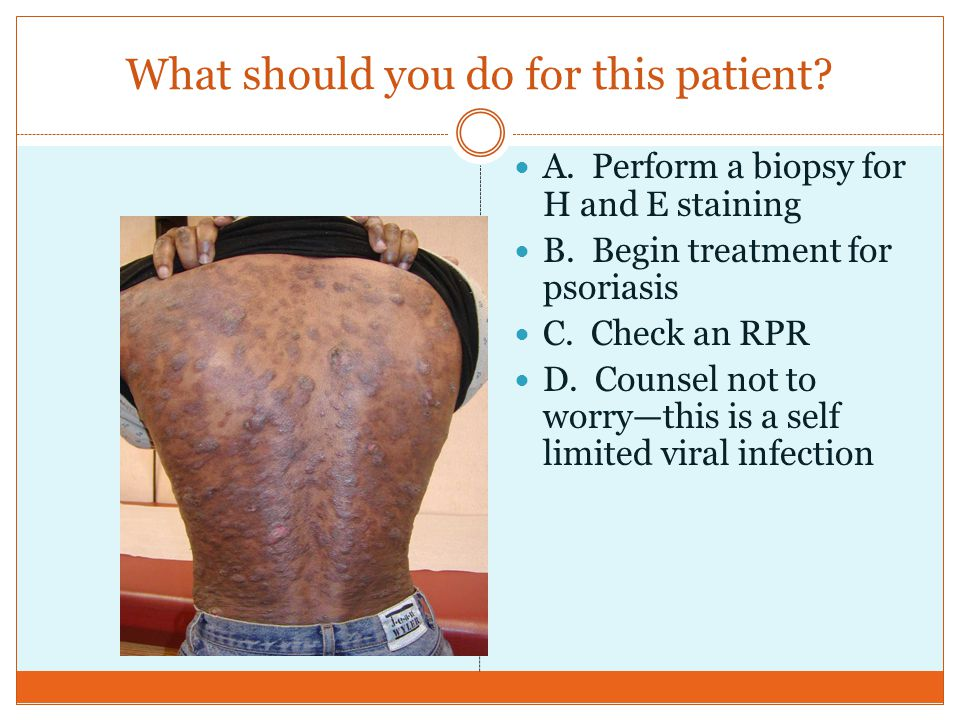 What should you do for this patient? A. Perform a biopsy for H and E staining B. Begin treatment for psoriasis C. Check an RPR D. Counsel not to worry