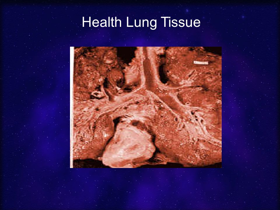 Health Lung Tissue