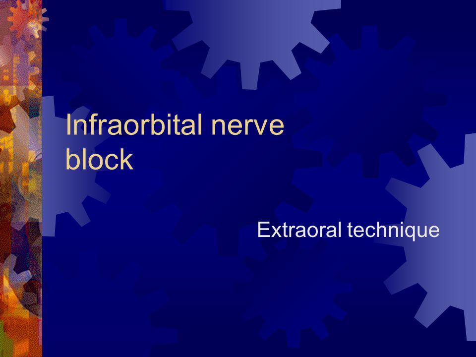 Infraorbital nerve block Extraoral technique