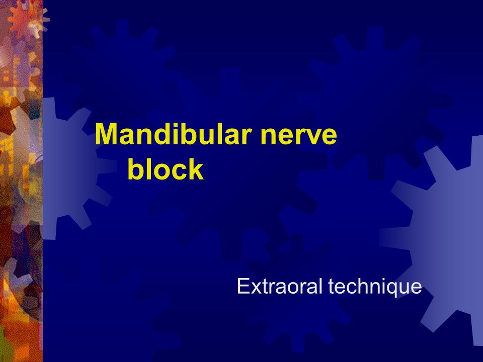 Mandibular nerve block Extraoral technique