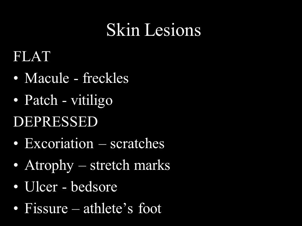 Skin Lesions FLAT Macule - freckles Patch - vitiligo DEPRESSED Excoriation – scratches Atrophy – stretch marks Ulcer - bedsore Fissure – athlete's foo