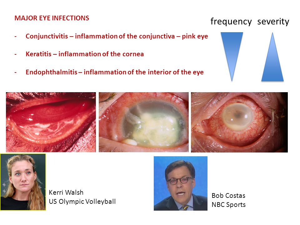 MAJOR EYE INFECTIONS -Conjunctivitis – inflammation of the conjunctiva – pink eye -Keratitis – inflammation of the cornea -Endophthalmitis – inflammation of the interior of the eye frequencyseverity Kerri Walsh US Olympic Volleyball Bob Costas NBC Sports