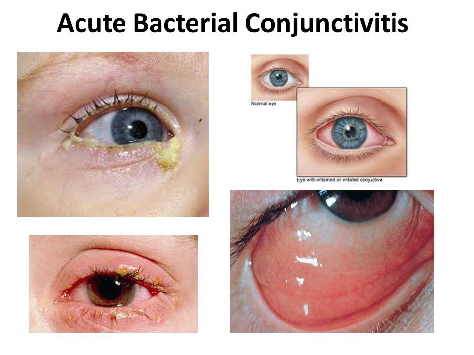Acute Bacterial Conjunctivitis