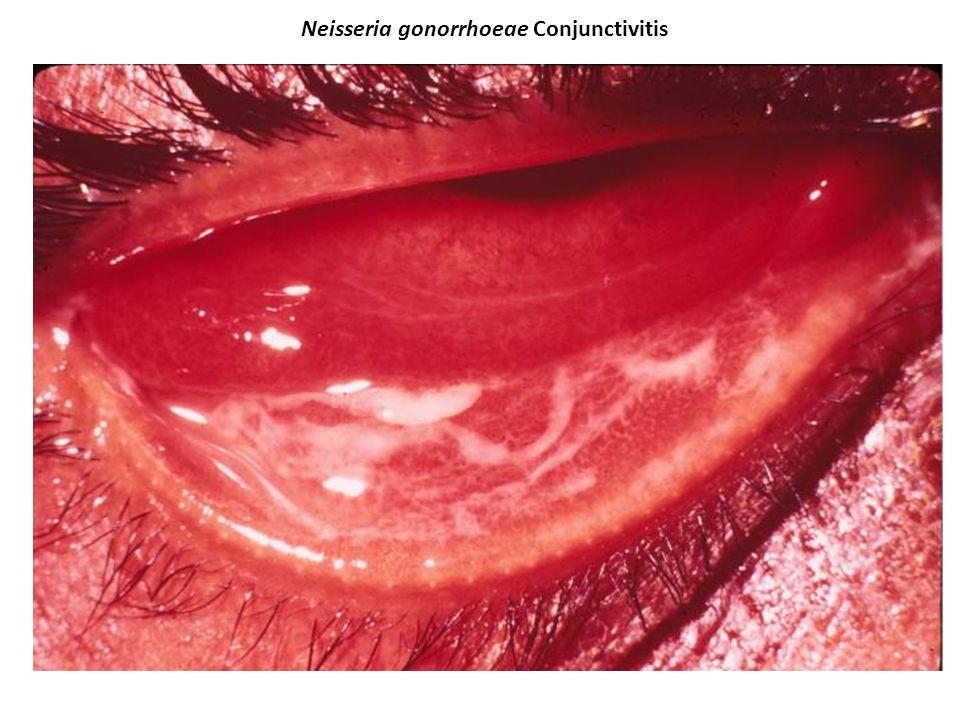 Neisseria gonorrhoeae Conjunctivitis