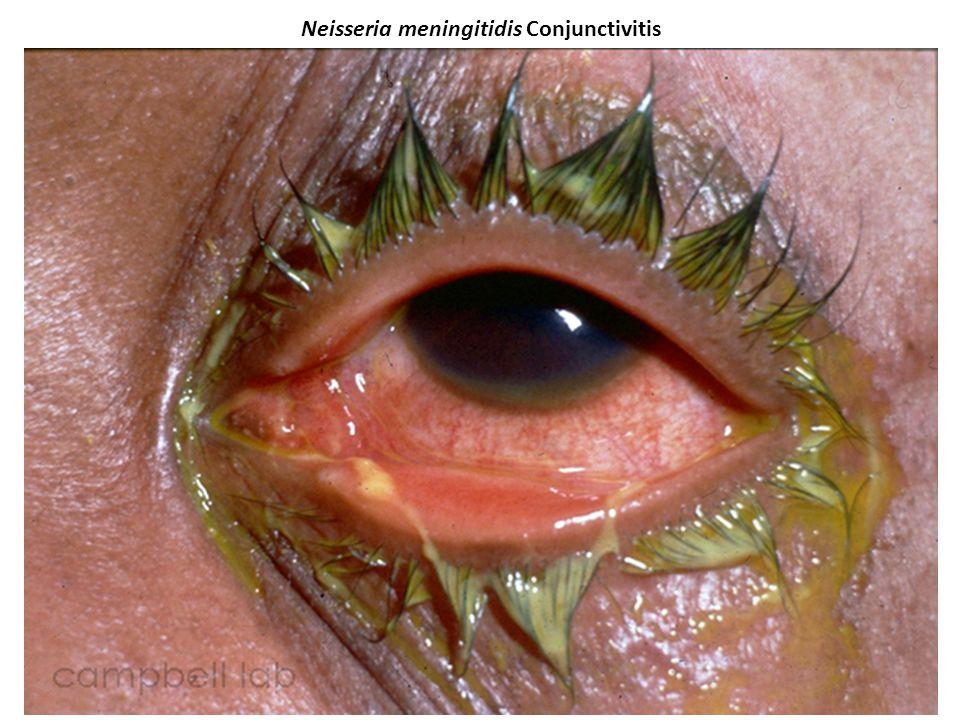 Neisseria meningitidis Conjunctivitis