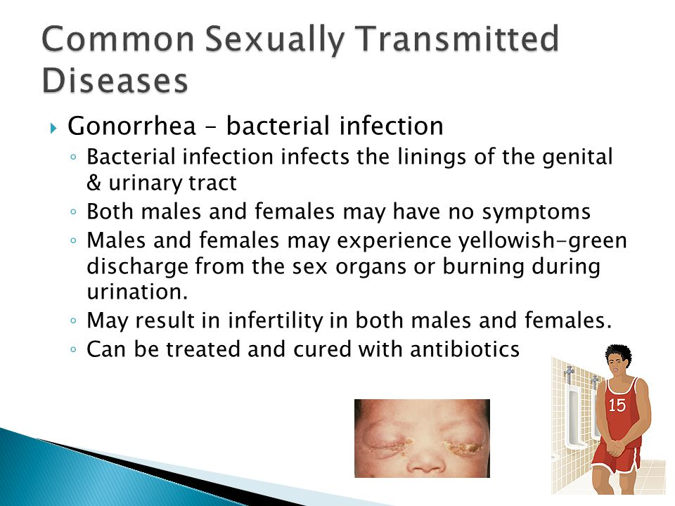  Gonorrhea – bacterial infection ◦ Bacterial infection infects the linings of the genital & urinary tract ◦ Both males and females may have no sympto