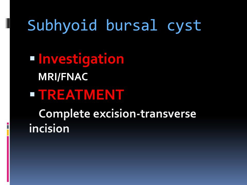 Subhyoid bursal cyst  Investigation MRI/FNAC  TREATMENT Complete excision-transverse incision