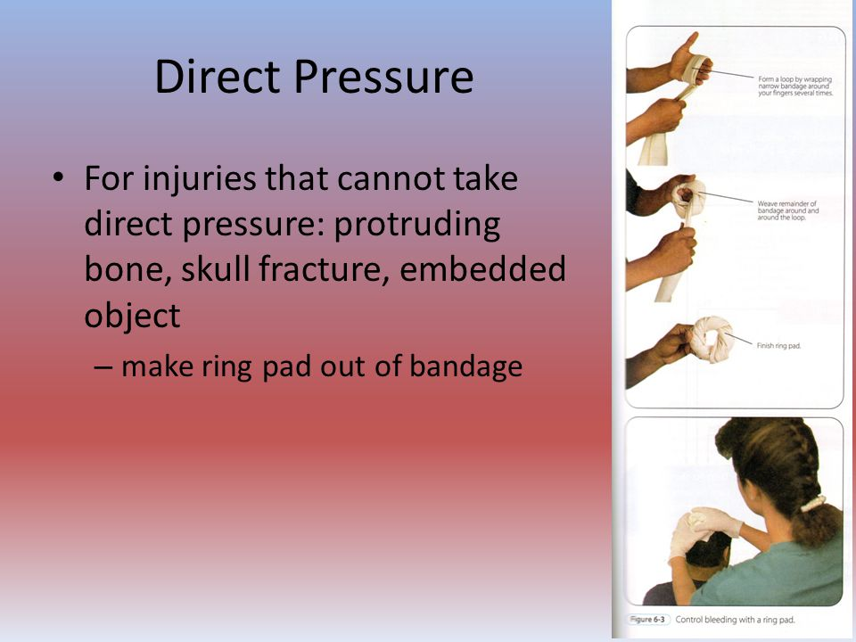 Direct Pressure For injuries that cannot take direct pressure: protruding bone, skull fracture, embedded object – make ring pad out of bandage