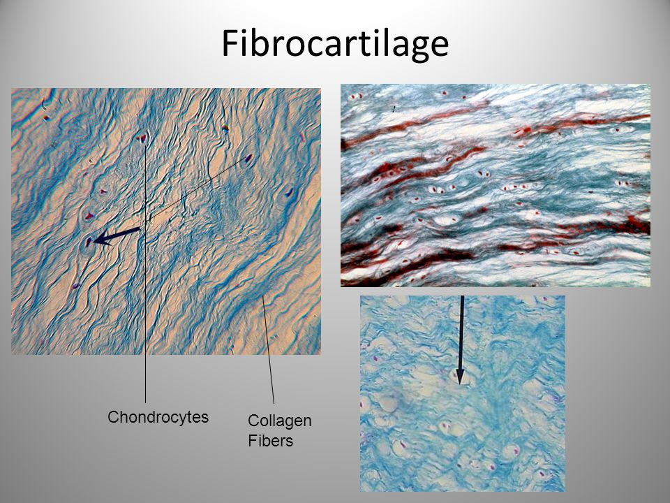 Fibrocartilage Chondrocytes Collagen Fibers
