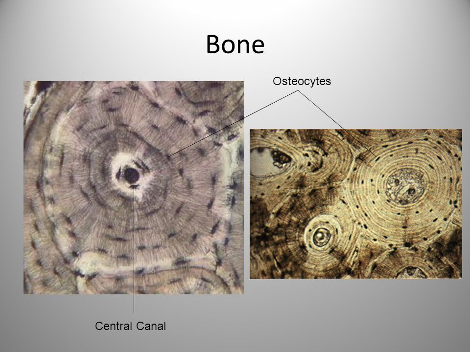 Bone Osteocytes Central Canal