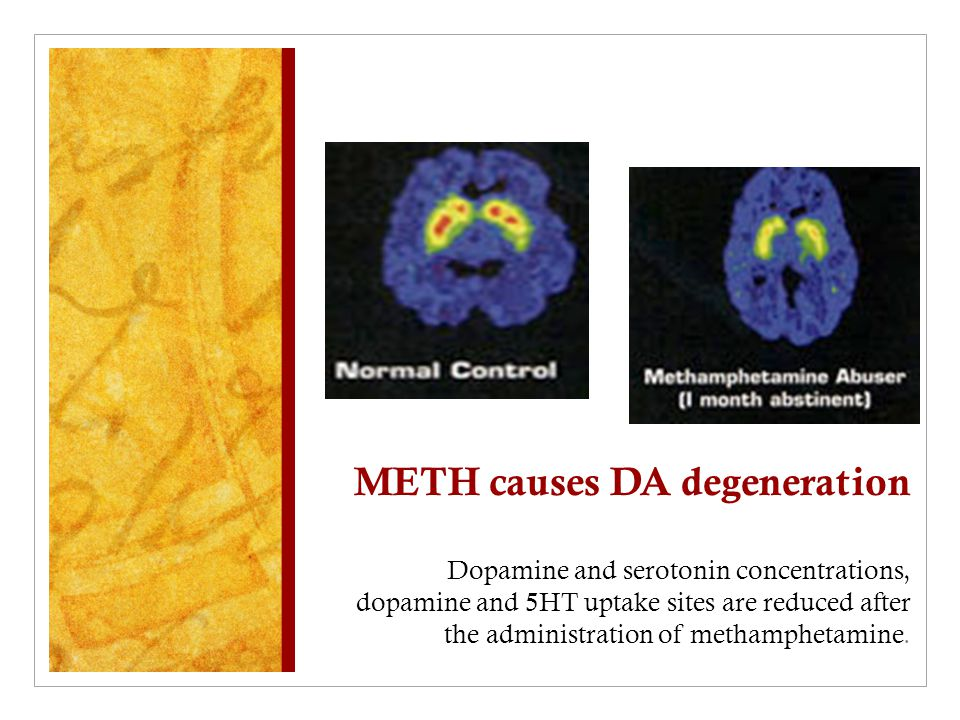 METH causes DA degeneration Dopamine and serotonin concentrations, dopamine and 5HT uptake sites are reduced after the administration of methamphetami
