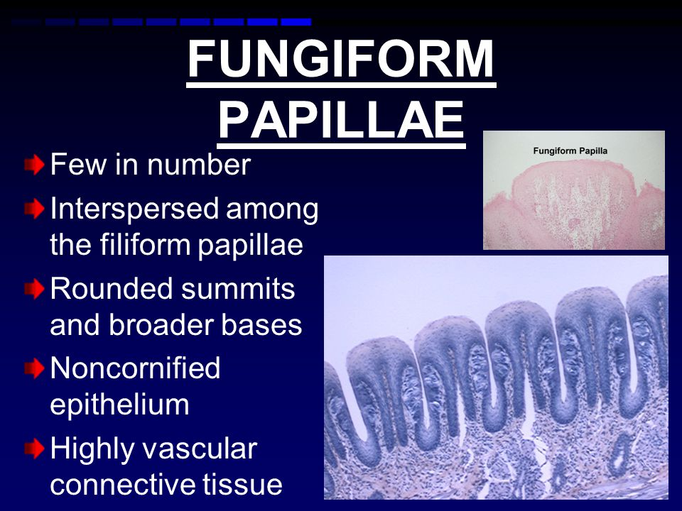 FUNGIFORM PAPILLAE Few in number Interspersed among the filiform papillae Rounded summits and broader bases Noncornified epithelium Highly vascular connective tissue