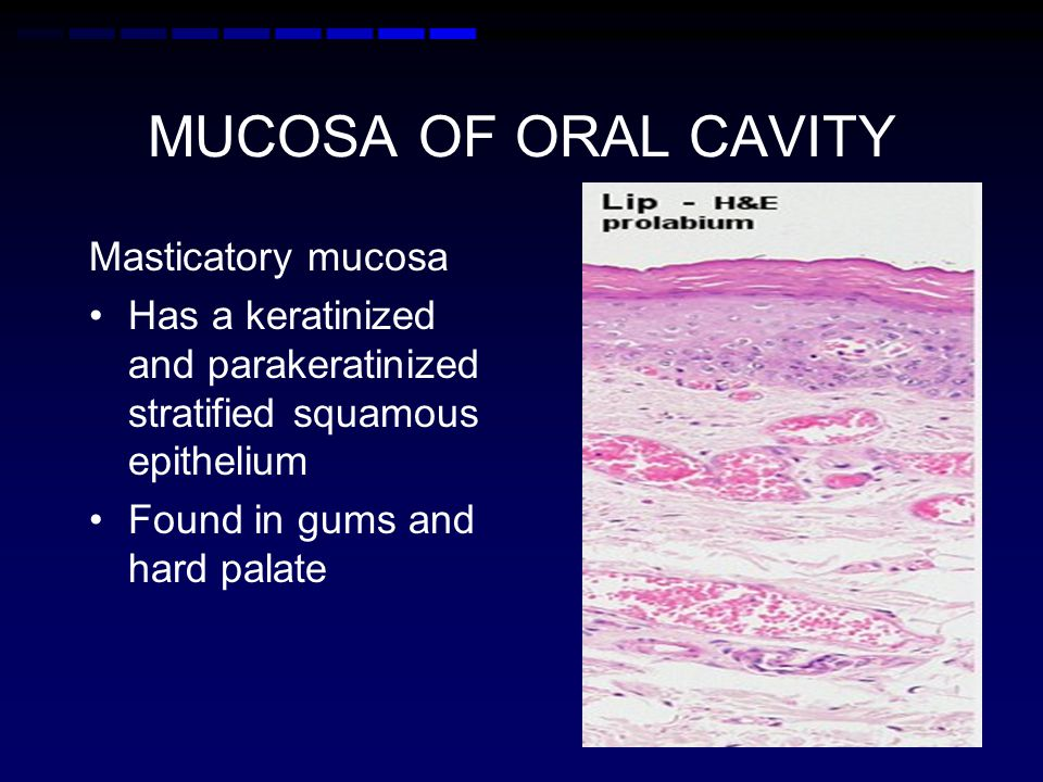 MUCOSA OF ORAL CAVITY Masticatory mucosa Has a keratinized and parakeratinized stratified squamous epithelium Found in gums and hard palate
