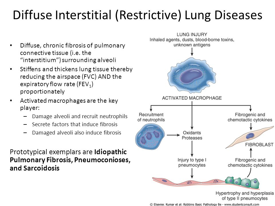 """Diffuse Interstitial (Restrictive) Lung Diseases Diffuse, chronic fibrosis of pulmonary connective tissue (i.e. the """"interstitium"""") surrounding alveol"""