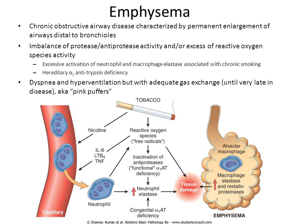 Emphysema Chronic obstructive airway disease characterized by permanent enlargement of airways distal to bronchioles Imbalance of protease/antiproteas