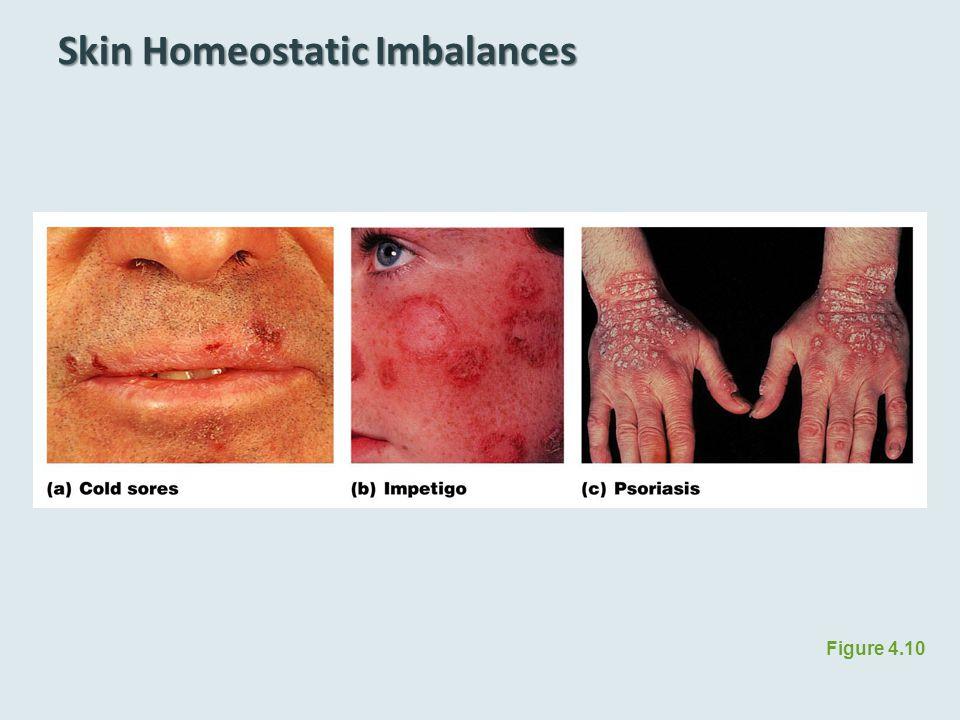 Skin Homeostatic Imbalances Figure 4.10
