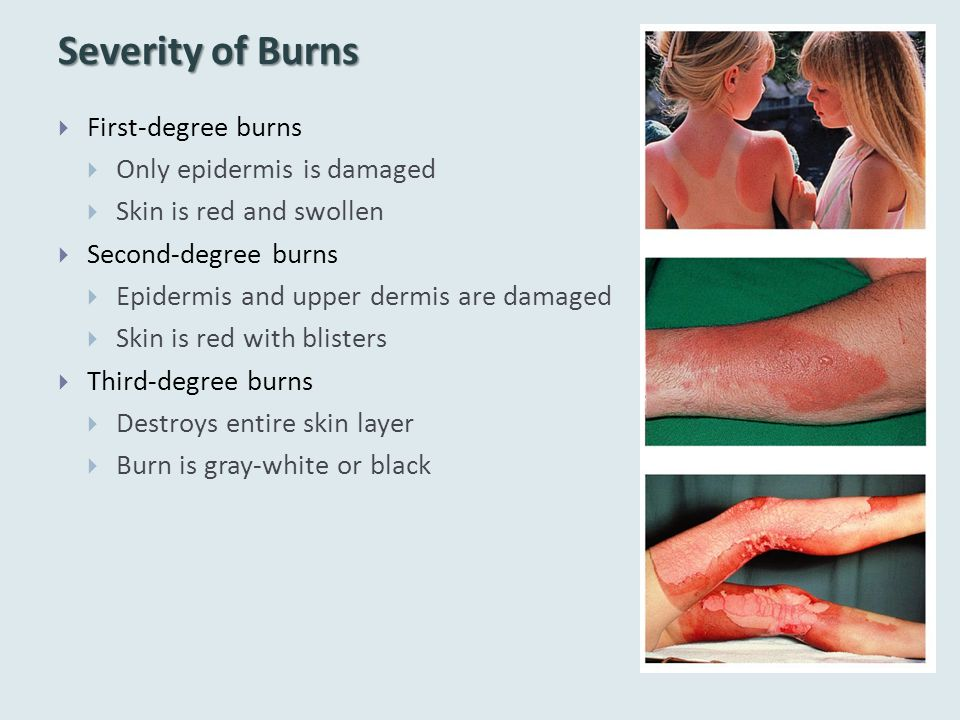 Severity of Burns  First-degree burns  Only epidermis is damaged  Skin is red and swollen  Second-degree burns  Epidermis and upper dermis are da