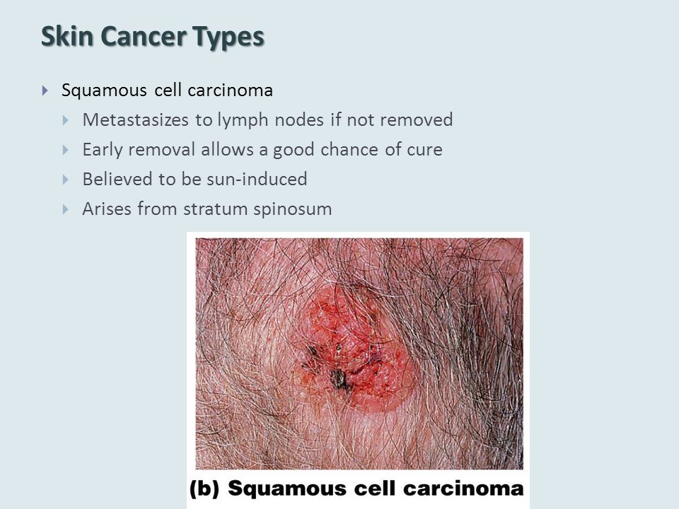Skin Cancer Types  Squamous cell carcinoma  Metastasizes to lymph nodes if not removed  Early removal allows a good chance of cure  Believed to be