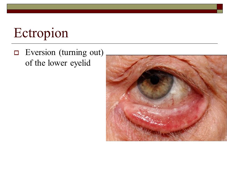 Ectropion  Eversion (turning out) of the lower eyelid