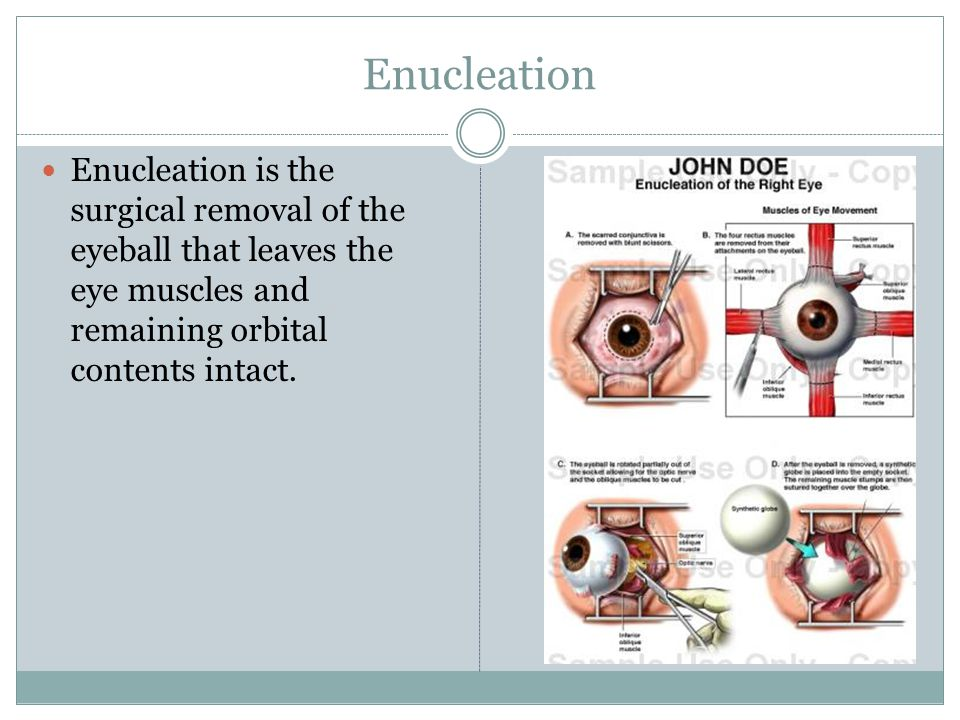 Enucleation Enucleation is the surgical removal of the eyeball that leaves the eye muscles and remaining orbital contents intact.
