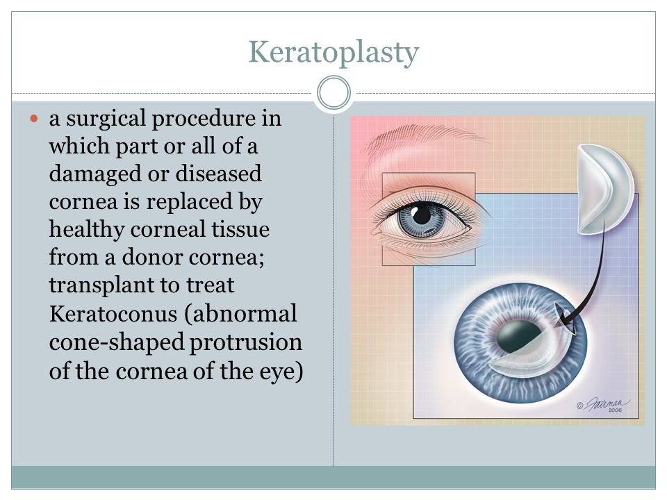 Keratoplasty a surgical procedure in which part or all of a damaged or diseased cornea is replaced by healthy corneal tissue from a donor cornea; transplant to treat Keratoconus (abnormal cone-shaped protrusion of the cornea of the eye)