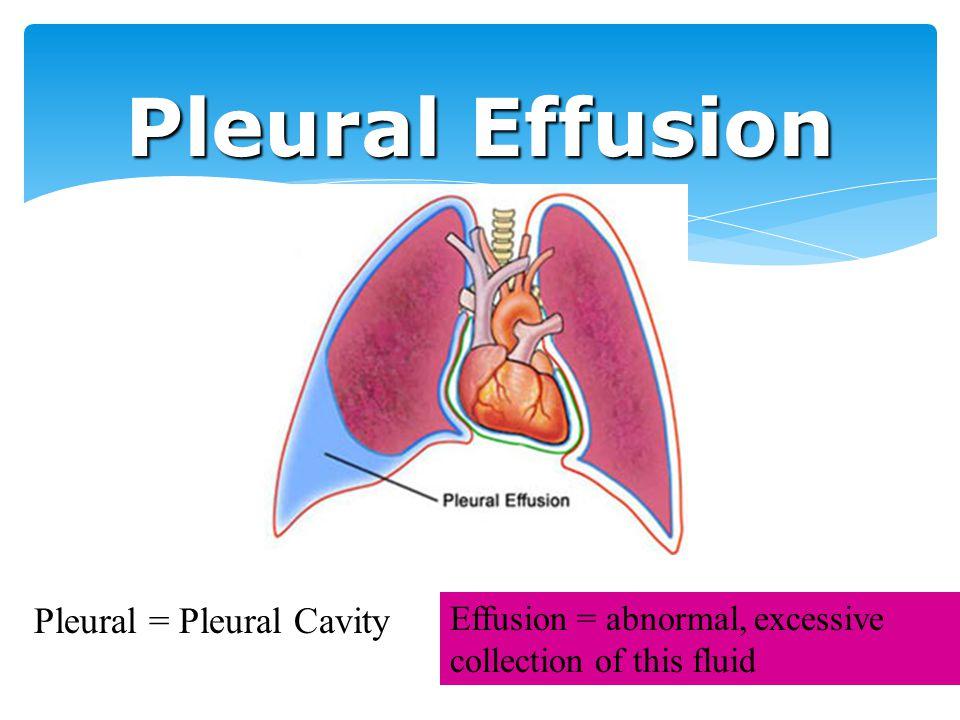 Pleural Effusion Pleural = Pleural Cavity Effusion = abnormal, excessive collection of this fluid