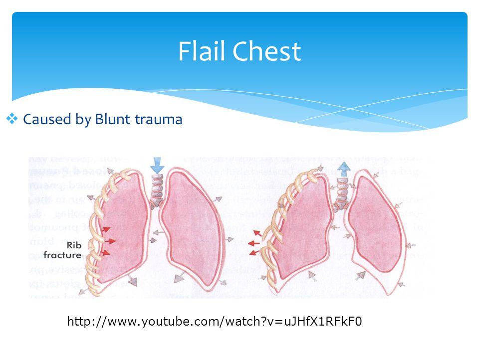 Flail Chest  Caused by Blunt trauma http://www.youtube.com/watch?v=uJHfX1RFkF0