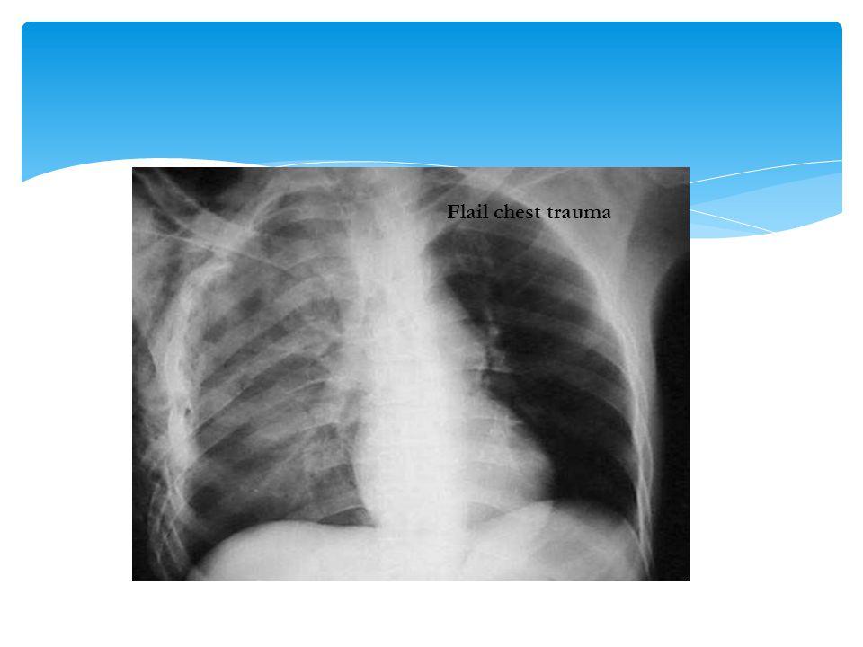 Flail chest trauma
