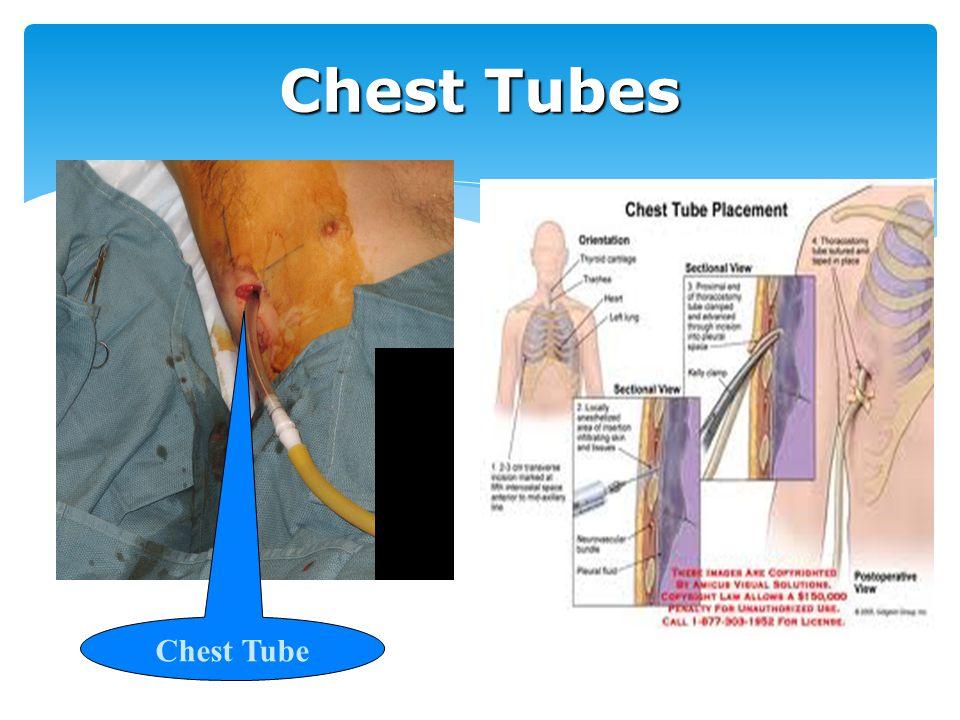 Chest Tubes Chest Tube