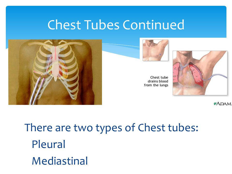 There are two types of Chest tubes: Pleural Mediastinal Chest Tubes Continued