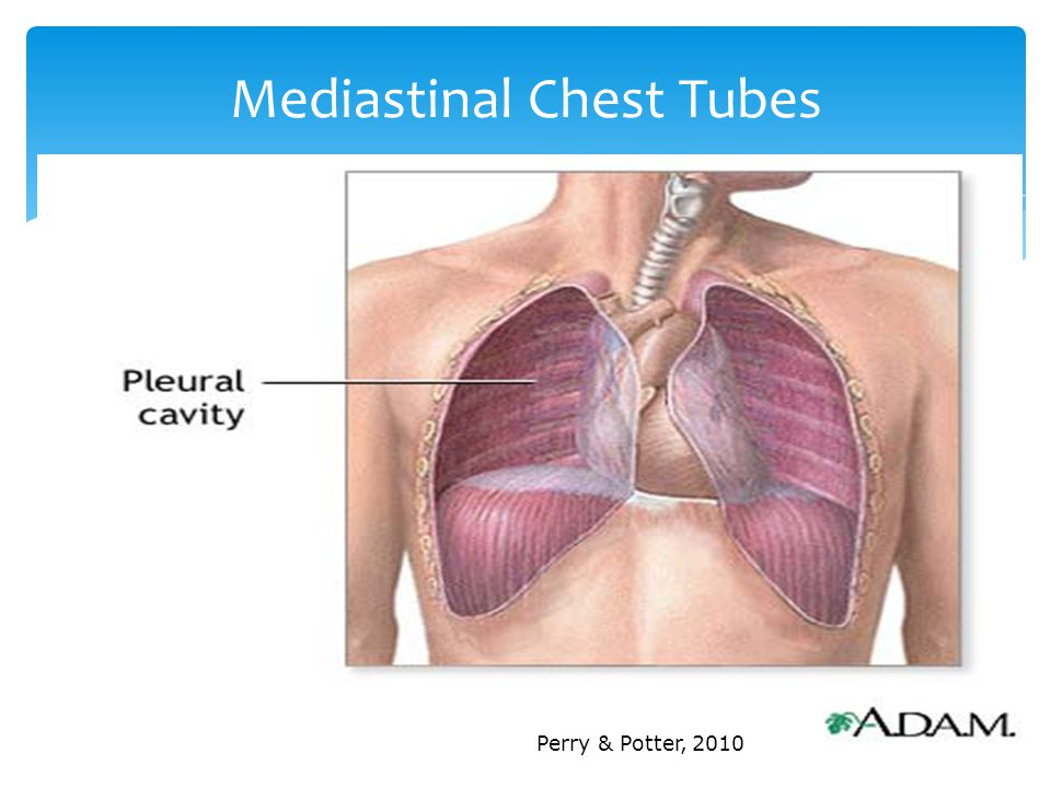 Mediastinal Chest Tubes Perry & Potter, 2010