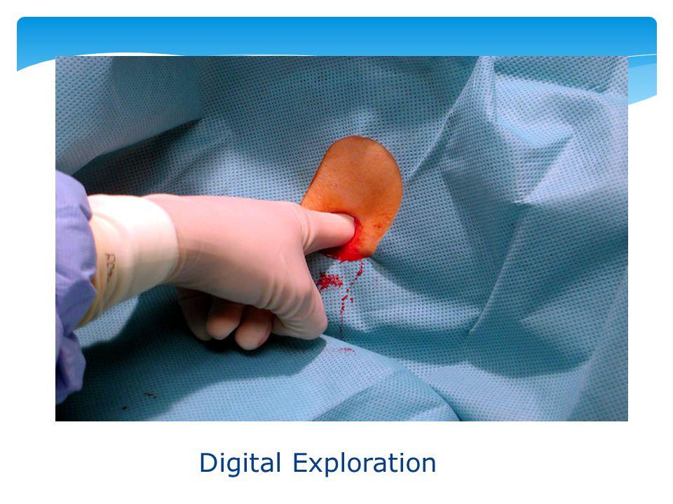 Digital Exploration