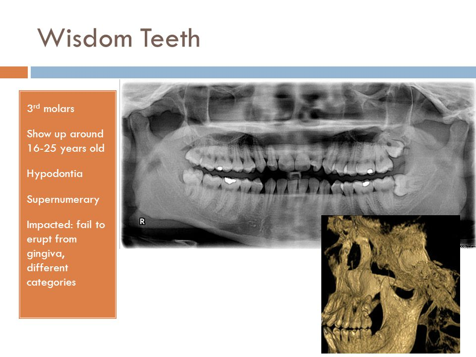 Wisdom Teeth 3 rd molars Show up around 16-25 years old Hypodontia Supernumerary Impacted: fail to erupt from gingiva, different categories