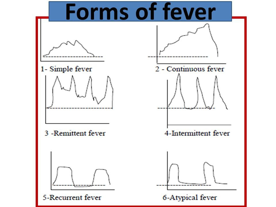 Forms of fever