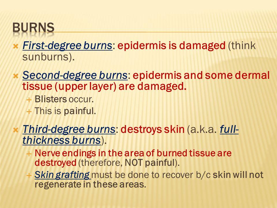 First-degree burns: epidermis is damaged (think sunburns).