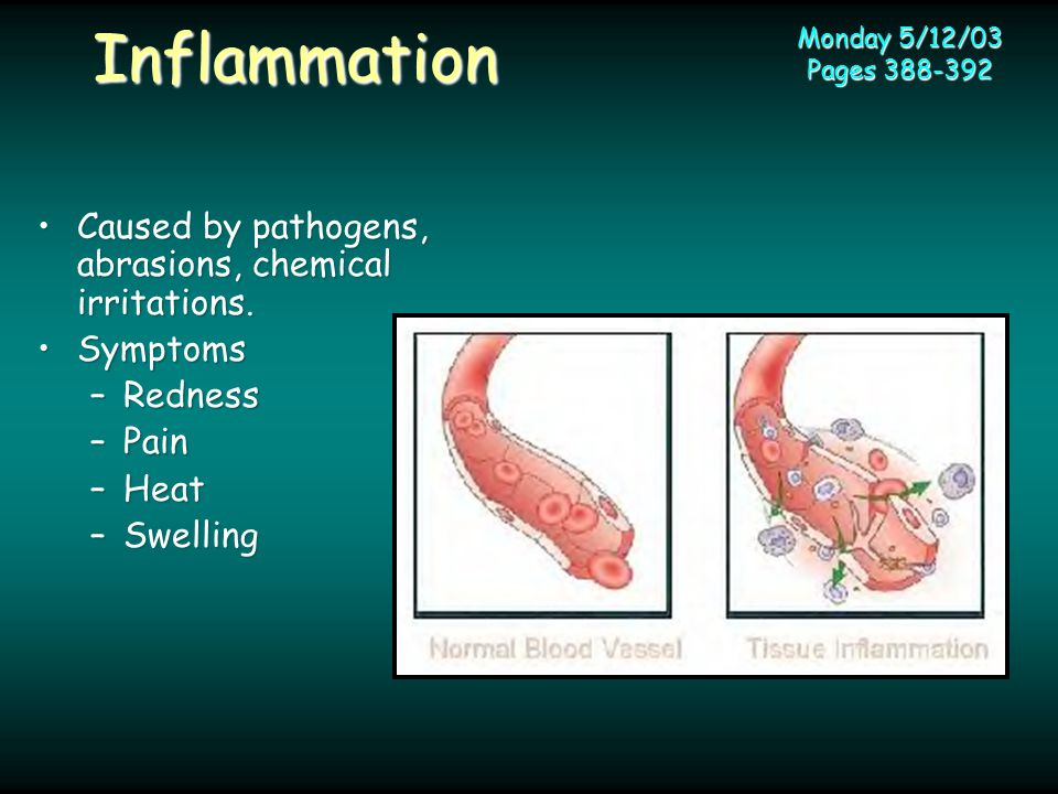 Inflammation Monday 5/12/03 Pages 388-392 Caused by pathogens, abrasions, chemical irritations.Caused by pathogens, abrasions, chemical irritations.