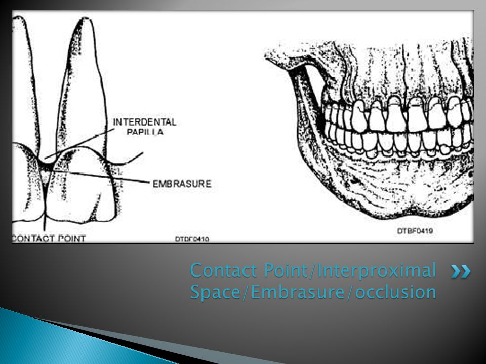 Contact Point/Interproximal Space/Embrasure/occlusion