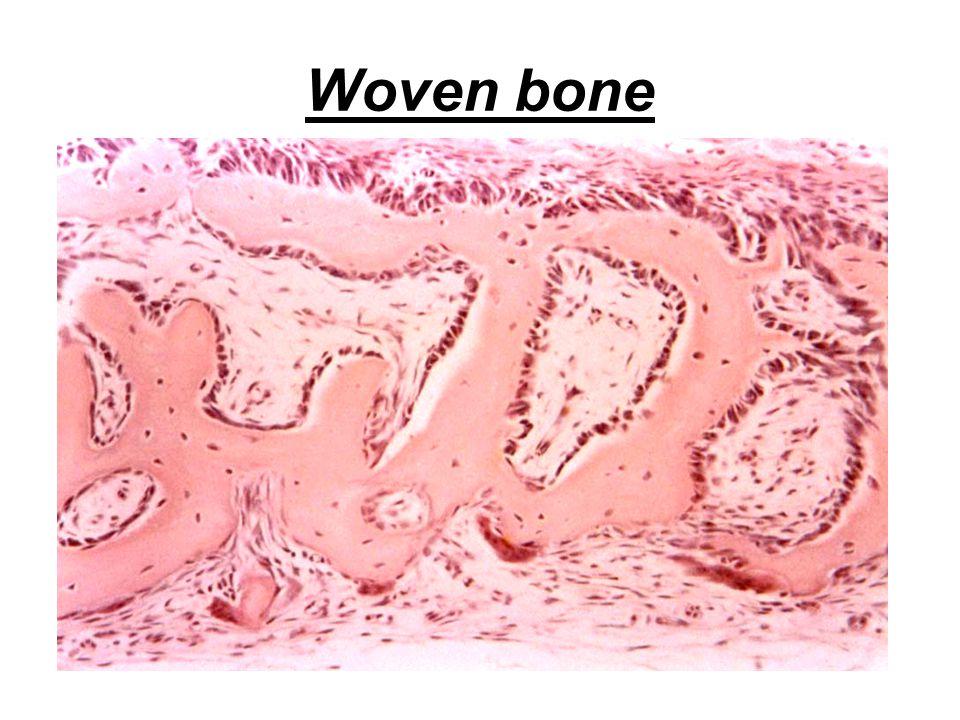 Woven bone