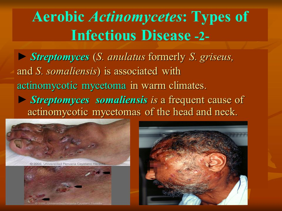 Aerobic Actinomycetes: Types of Infectious Disease -2- Streptomyces (S. anulatus formerly S. griseus, ► Streptomyces (S. anulatus formerly S. griseus,