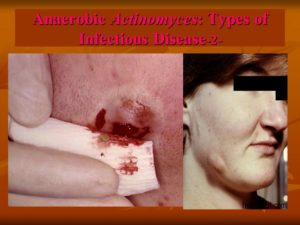Anaerobic Actinomyces: Types of Infectious Disease -2-