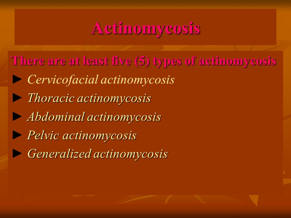 Actinomycosis There are at least five (5) types of actinomycosis ► Cervicofacial actinomycosis Thoracic actinomycosis ► Thoracic actinomycosis Abdomin