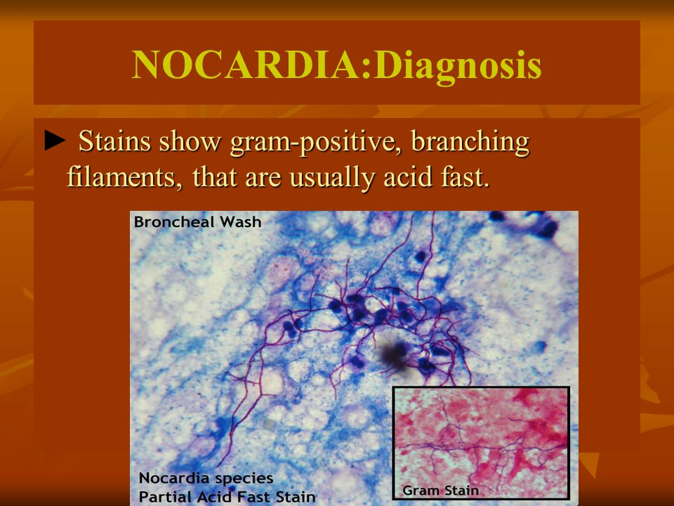 NOCARDIA:Diagnosis Stains show gram-positive, branching filaments, that are usually acid fast. ► Stains show gram-positive, branching filaments, that