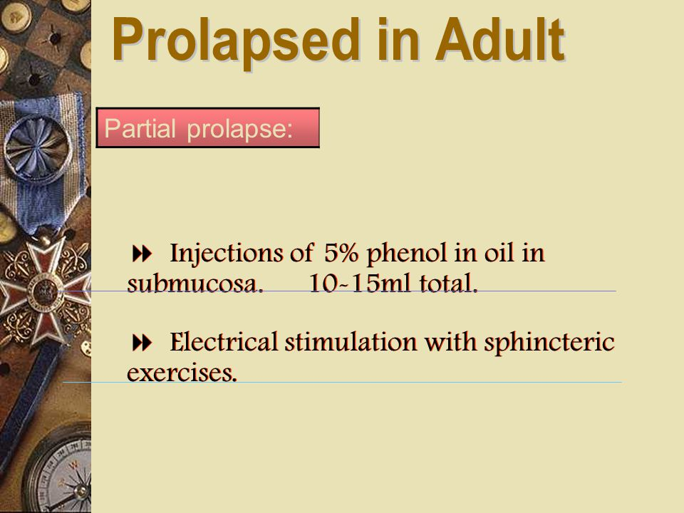 Partial prolapse:  Injections of 5% phenol in oil in submucosa. 10-15ml total.  Electrical stimulation with sphincteric exercises.  Injections of 5