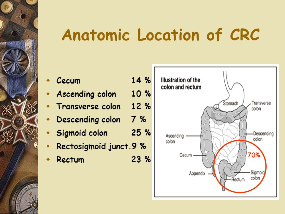Anatomic Location of CRC  Cecum14 %  Ascending colon10 %  Transverse colon12 %  Descending colon7 %  Sigmoid colon25 %  Rectosigmoid junct.9 % 