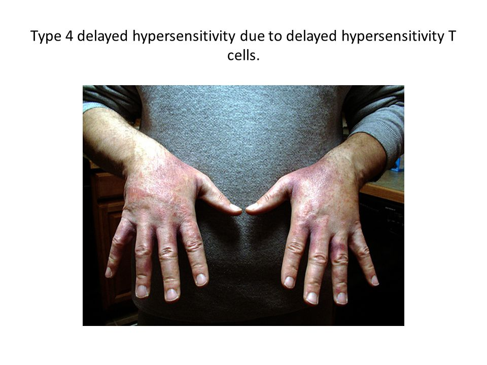 Type 4 delayed hypersensitivity due to delayed hypersensitivity T cells.