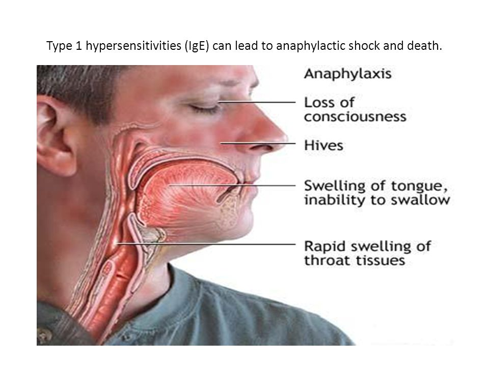 Type 1 hypersensitivities (IgE) can lead to anaphylactic shock and death.