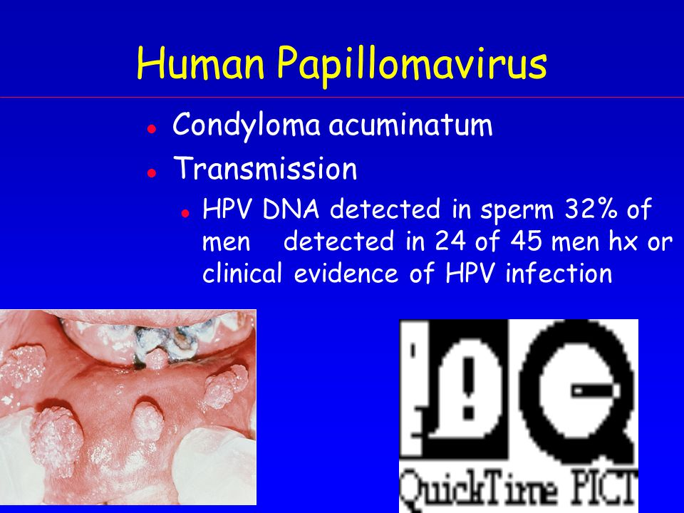 Human Papillomavirus l Condyloma acuminatum l Transmission l HPV DNA detected in sperm 32% of mendetected in 24 of 45 men hx or clinical evidence of HPV infection