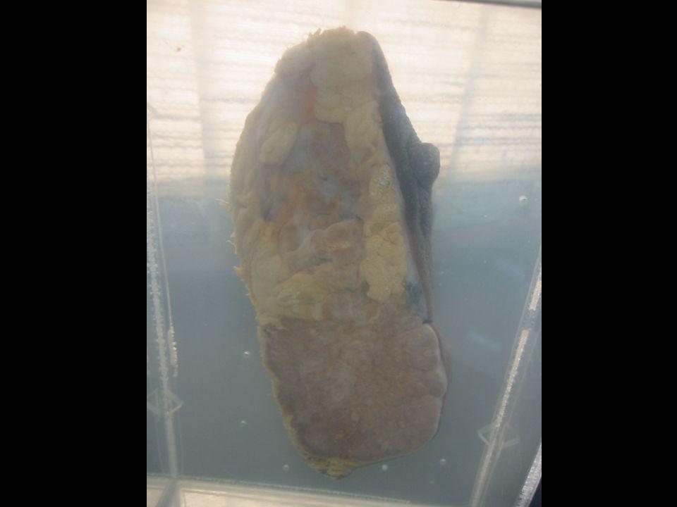 Tumor cell nest Dense Fibrous tissue Stroma